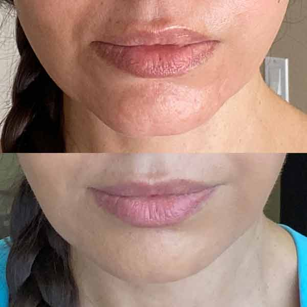 Chin-filler-acne-scarring